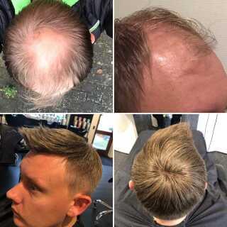 Før og efter. Dennis var tyndhåret og helt skaldet på toppen af issen. Efter 30 minutter i stolen hos frisør Ertmann & VP i Aars var hans udseende totalt forandret. Privatfotos.