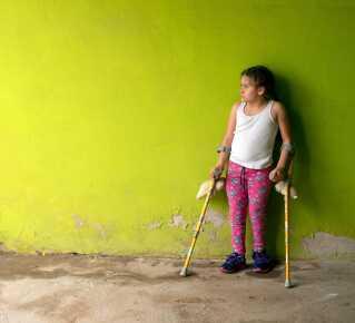Anita er født med rygmarvsbrok, hvor knoglerne i rygsøjlen ikke bliver dannet helt og har svært ved at tisse
