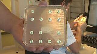 Af de 14 typer antibiotika-tabletter på pladen her, er det kun én, der kan slå bakterien ihjel. Det er antibiotikummet i øverste højre hjørne, hvor bakterierne ikke har kunnet vokse helt ind til tabletten.
