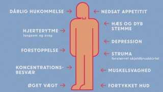 Symptomer på for lavt stofskifte.