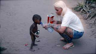 Billederne af den lille, underernærede Hope gik verden rundt i 2016, og førte til 20 mails fra CNN og BBC samt en masse donationer til Anja Lovéns nødhjælpsfond, DINNødhjælp.