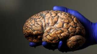 Man ved, at den neurologiske årsag til ordblindhed skal findes i tindingelappen i venstre hjernehalvdel.