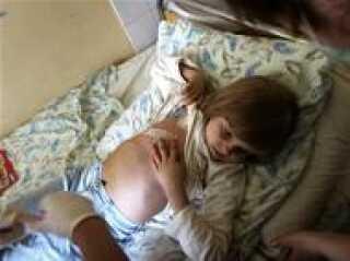 Otte-årige Vika Chervinska på hospitalet. Hun har paryk, og moderen mener hendes kræft skyldes Tjernobyl
