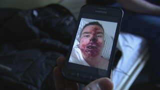 Nicolai Jensen fik et anfald, da han var ude at gå og væltede og kom slemt til skade.