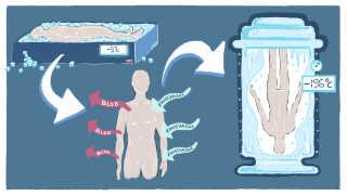 Inden kroppen fryses ned, tappes den for blod og fyldes med forskellige væsker. Resultatet er bedst, hvis processen påbegyndes inden for kort tid efter, at døden er indtruffet.
