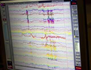 Sådan ser målingerne fra elektroderne ud på skærmen. De enkelte kurver viser de elektriske signalers udsving i hjernen.