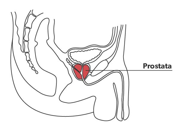 Stik i prostata gennem endetarmen afslører, om kræftformen er aggressiv eller hører til den ikke-agressive form for prostatakræft.