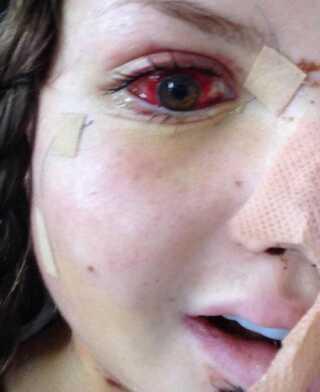 Maris øjenhuler blev knust da hun ramte stenen