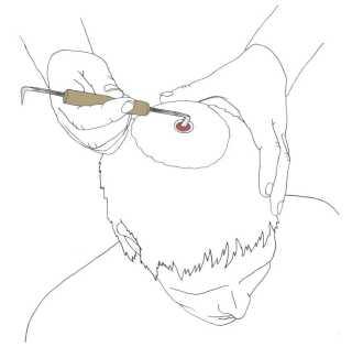 Trepanations-saven blev brugt til at skære hul i kranier, for at lette blodtrykket efter for eksempel slag i hovedet efter kamp. En sådan operation kunne redde livet på den skadede person.