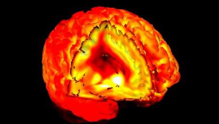 Højagressiv hjerne.