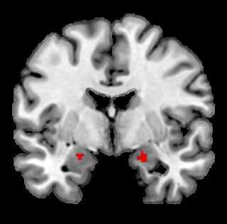 Aktiviteten af amygdala i hjernen.