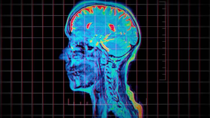 Ny Netflix-serie undersøger nærdødsoplevelser: Derfor kan der ske sære ting i hjernen, når du dør
