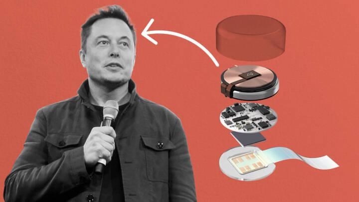 Elon Musk vil få blinde til at se og lamme til at gå: Her er hans plan