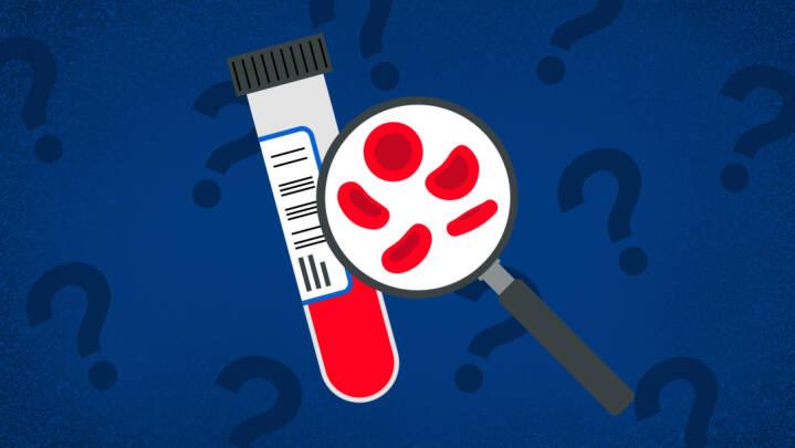Blodprøver afslører tilbagefald af kræft: 'Det her ændrer måden, vi ser kræft på'