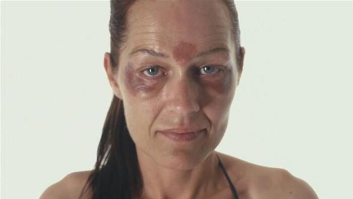 Tina har ødelagt sit ansigt med peeling i kampen mod rynker | Indland | DR